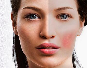 Cuidamos tu piel - Rojeces faciales