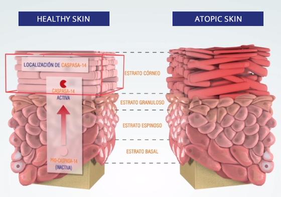 Atopic skin vs healthy skin