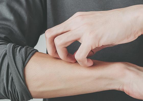 Cuidado corporal de la piel atópica