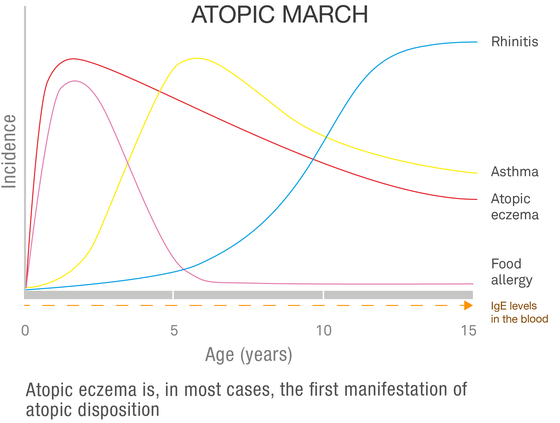 Atopic march