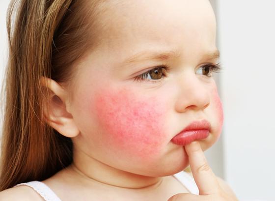 Niña con dermatitis atópica
