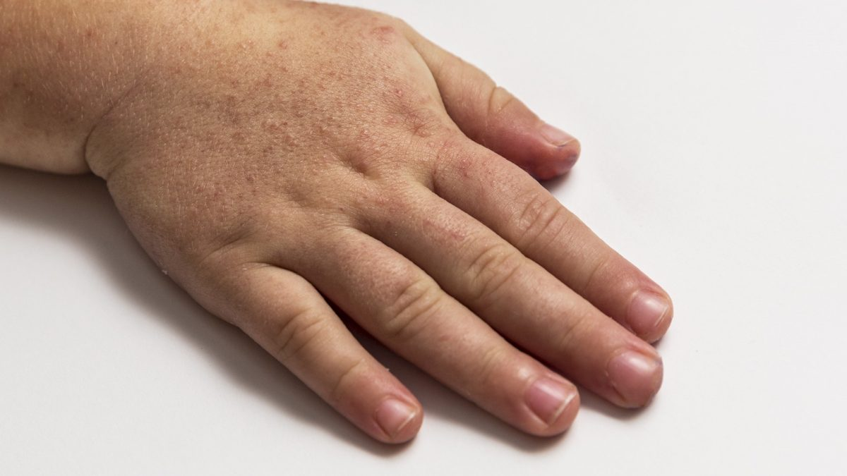 Picor de piel por estres