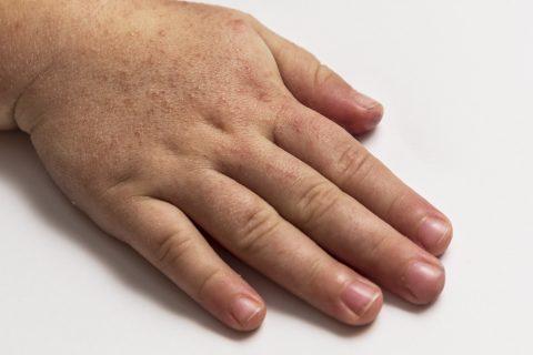 infecciones piel