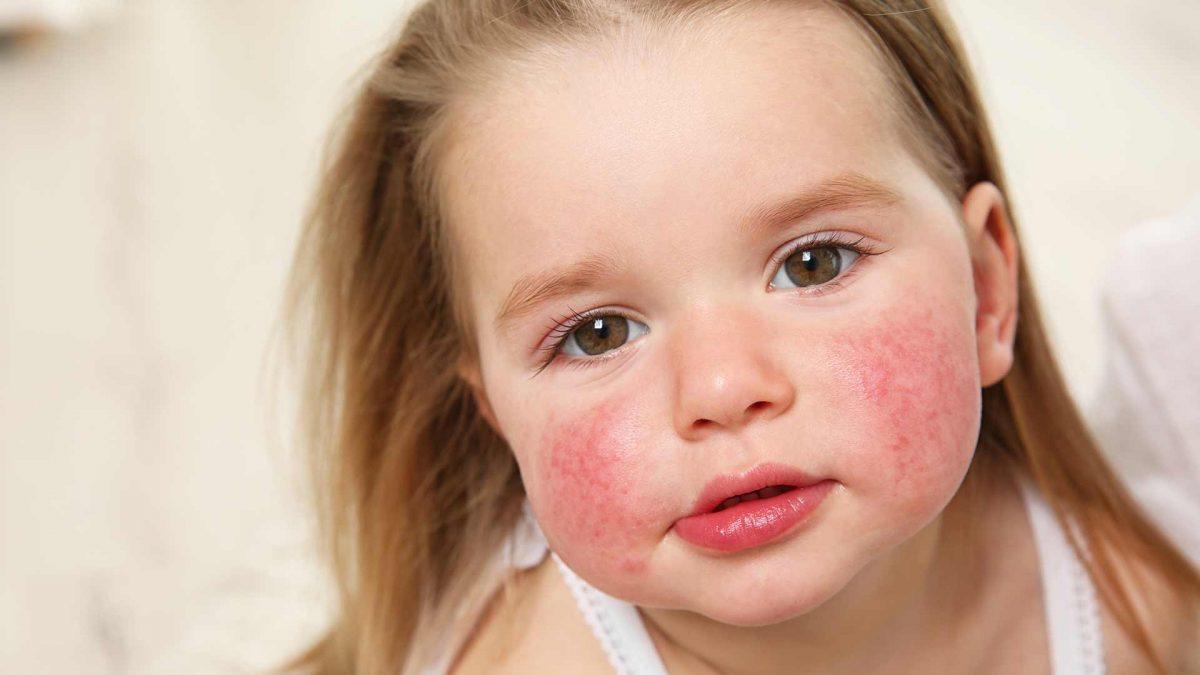 Estos productos te ayudarán a cuidar de tu piel atópica