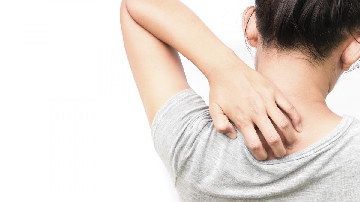Estos son los productos que mejor actuarán sobre el picor de tu piel