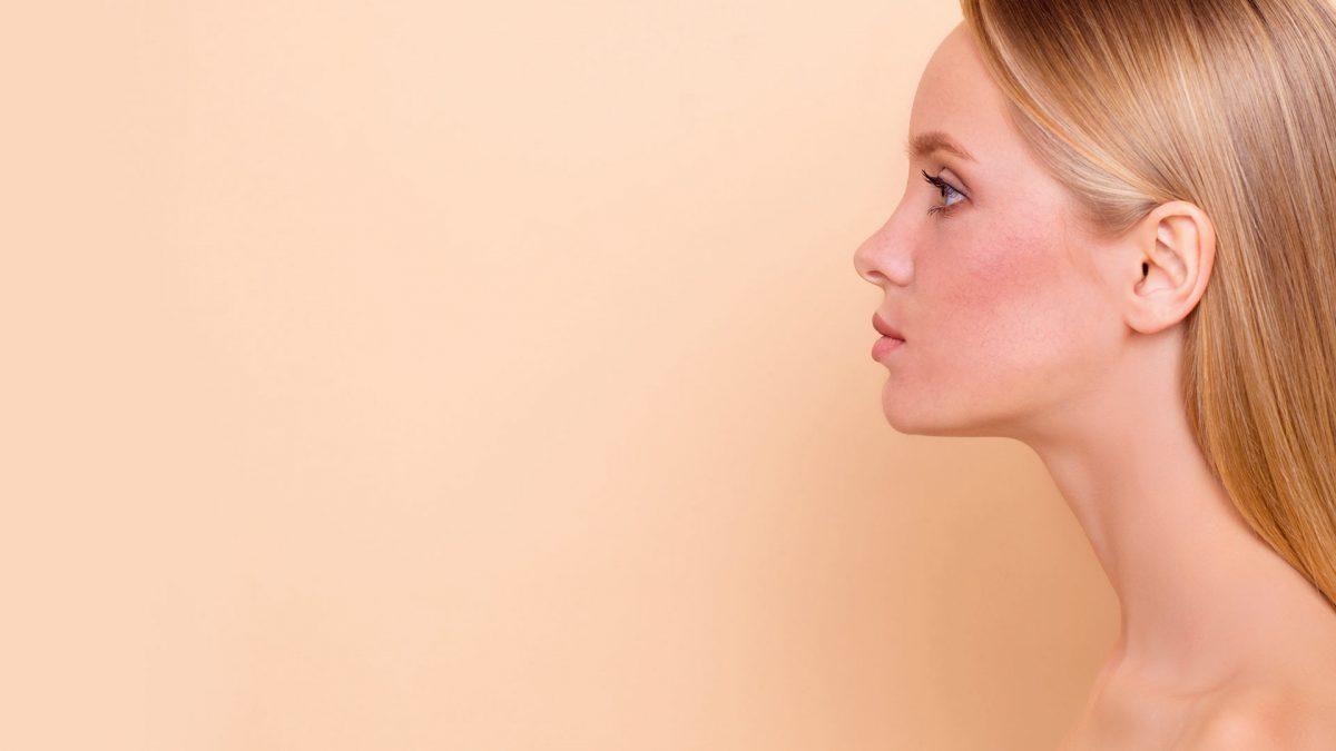 Cómo tratar la cuperosis y prevenirla