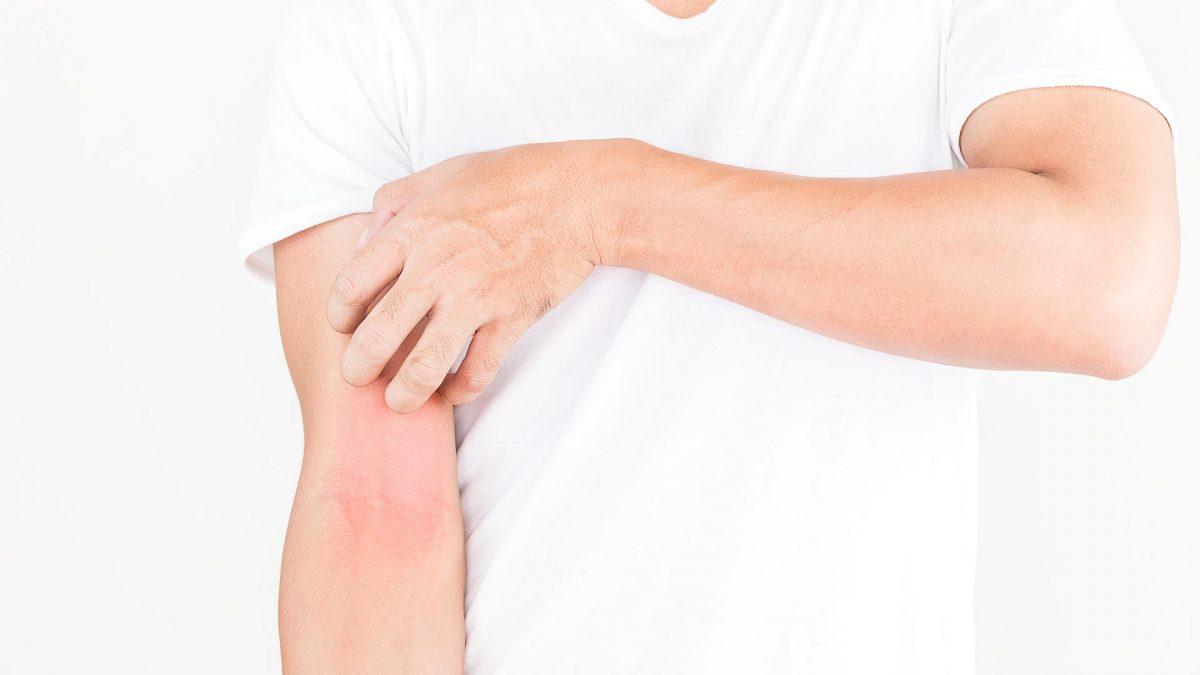 Tu mejor aliado contra la piel atópica