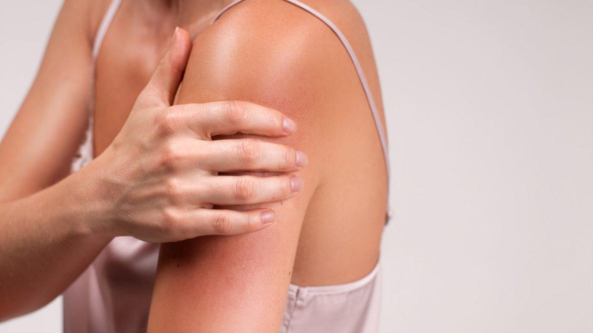 ¿Cómo puedes prevenir la irritación de la piel?