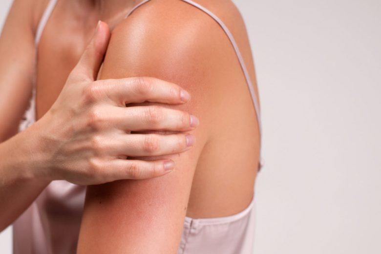 prevenir irritación piel
