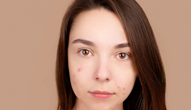 flequillo acné